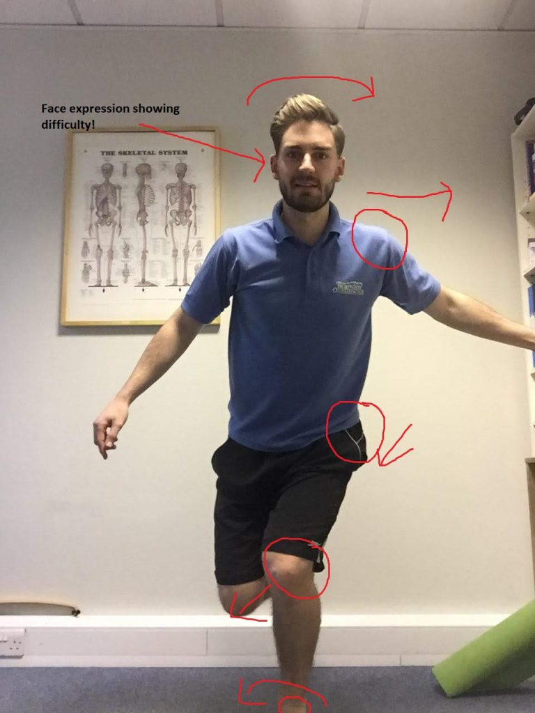 Osteopath showing what can go wrong when doing this knee exercise